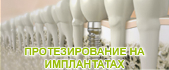 protez-na-implant-btn